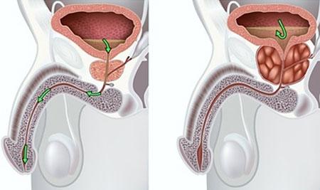 Проявление рака простаты