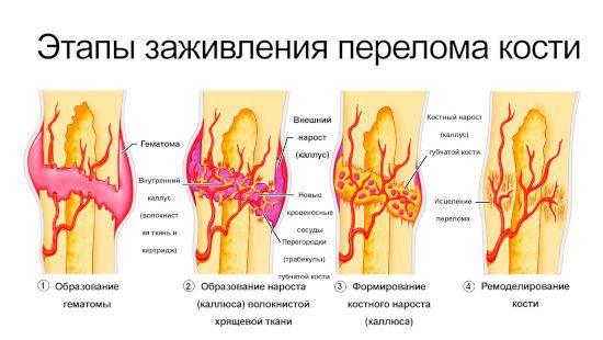 Этапы заживления перелома кости
