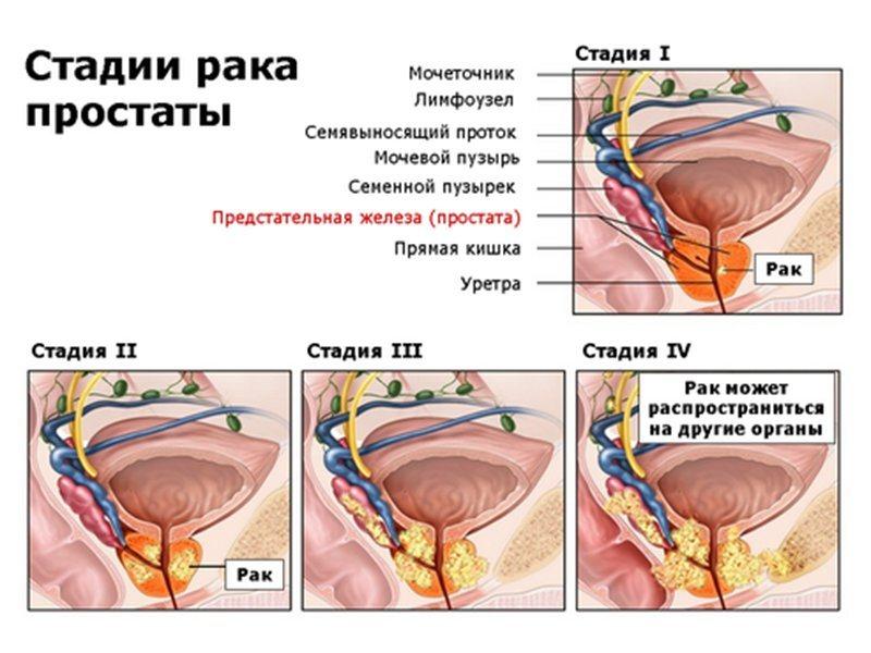 Классификация рака простаты