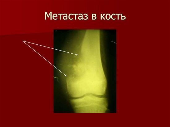 Метастаз в кость