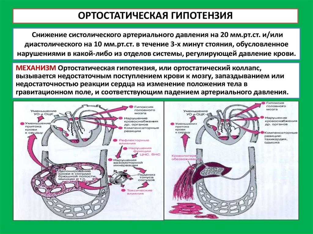 Признаки ортостатической гипотензии