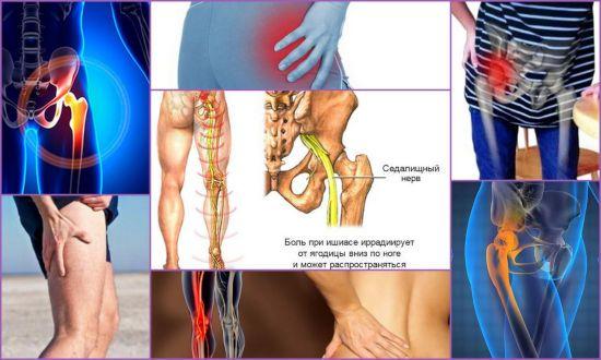 Симптомы защемления седалищного нерва