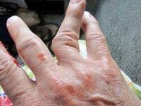 Как определить перелом пальца на ноге