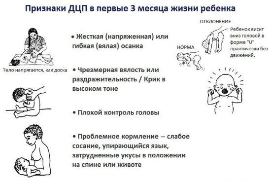 Признаки ДЦП у грудничков