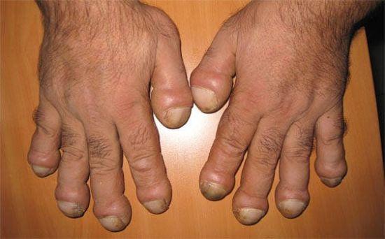 Кривые пальцы, барабанные палочки