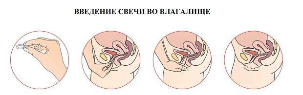 Применение в гинекологии