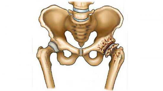 Деструкция кости в тазовой области