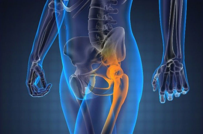 Метастазы в кости