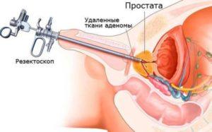 Аденоэктомия