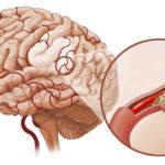 Препарат Витапрост — верный помощник в борьбе с простатитом
