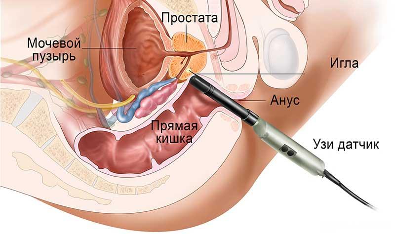 Трузи простатита простатит напряженная мышца