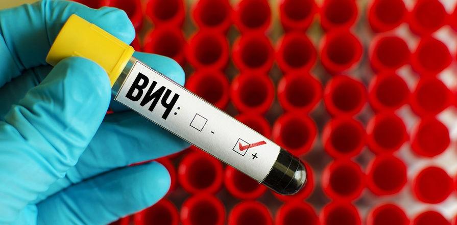 Бисептол и ВИЧ