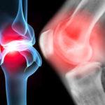 Болезни суставов и костей