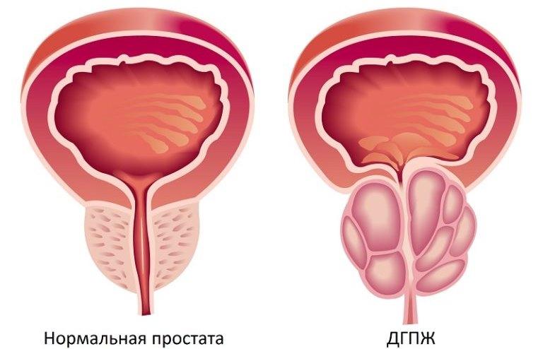 Диффузная гиперплазия предстательной железы что это такое