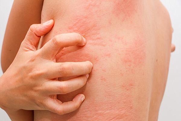 Наличие аллергии на лекарственные растения