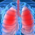 Инфекционные патологии дыхательной системы