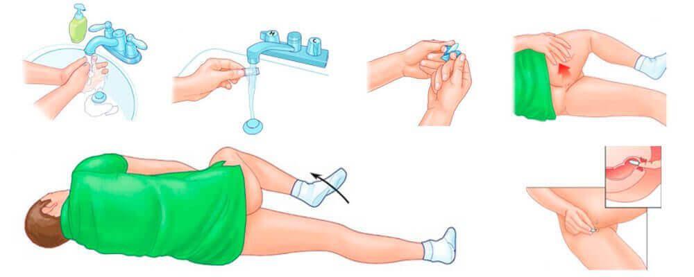 Инструкция по вводу ректальных свечей