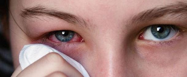 Нарушения в глазных тканях