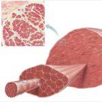 Снижение высокого тонуса мышечных волокон
