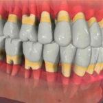 Стоматологические диагнозы