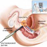 Диагностика гиперэхогенных включений в предстательной железе