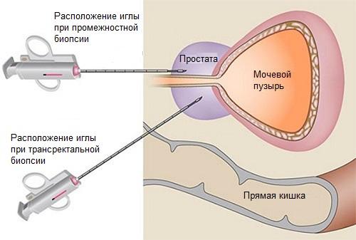 Виды биопсии предстательной железы