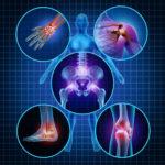 Заболевания ревматического генеза