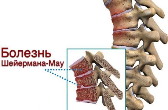 Позвоночник при болезни Шейермана Мау