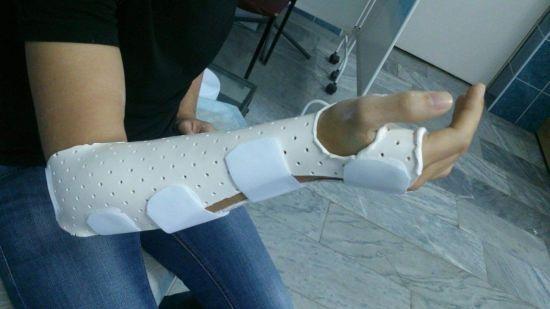 полимерная повязка на руку