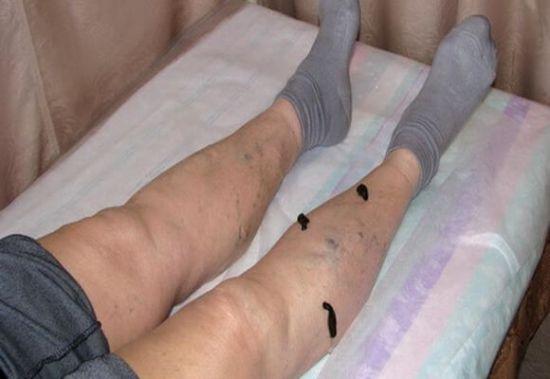 Пиявки на ногах