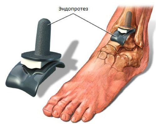 Эндопротез на голеностоп