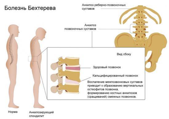 Информация о болезни Бехтерева