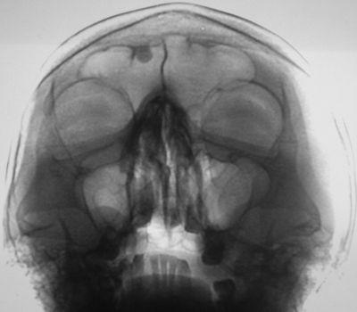 Рентген-снимок лобных пазух
