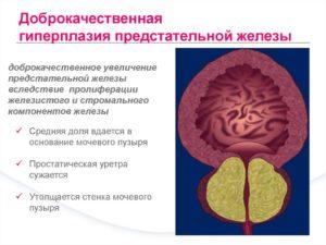 Доброкачесвенная гиперплазия простаты