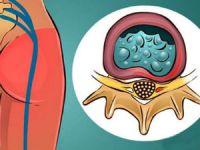 Ишиалгия седалищного нерва