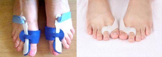 Ортезы на пальцы больших ног