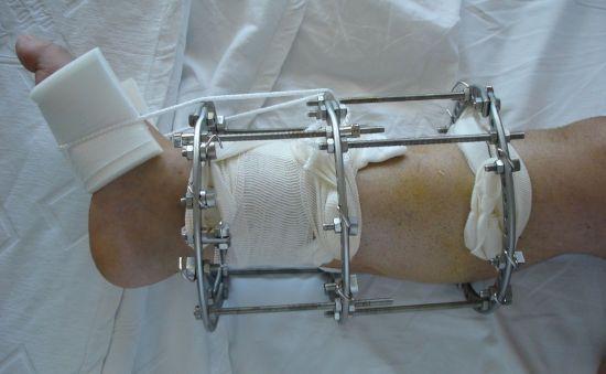 Нога в аппарате Илизарова