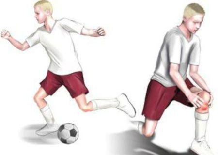 Игра в футбол, травма колена