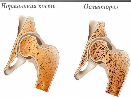Кость с остеопорозом