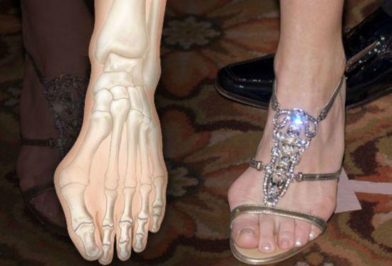 Нога в босоножке с каблуком
