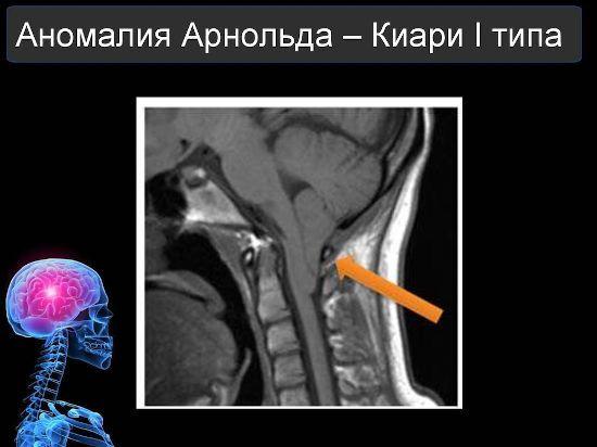 Аномалия Арнольда-Киари 1 типа