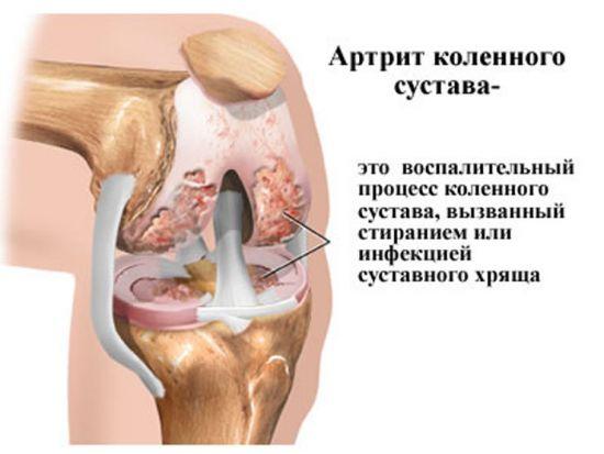 Характеристика артрита