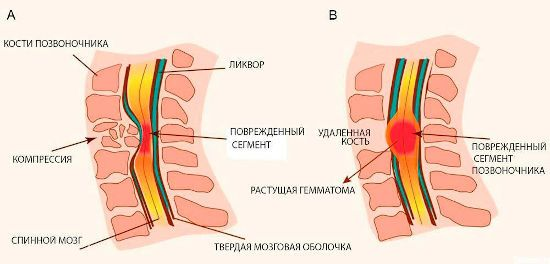 Сдавливание спинного мозга