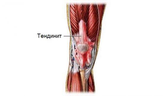 Воспаленное сухожилие колена