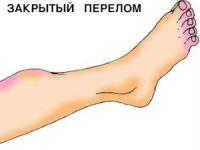 Лангетки на ногу при переломе