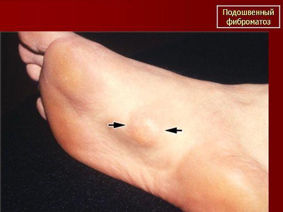 Подошвенный фиброматоз