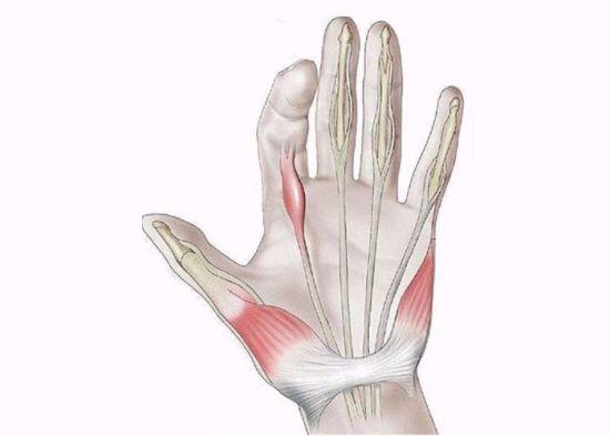Лигаментит пальца