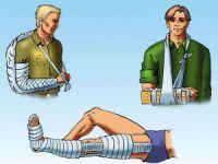Обезболивающие при переломах