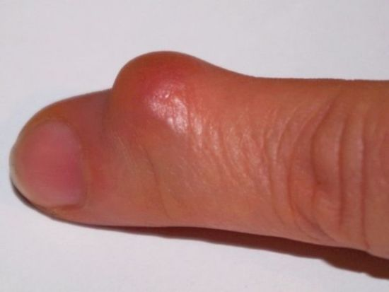 красная шишка на пальце