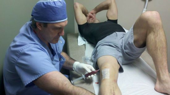 Пункция с колена